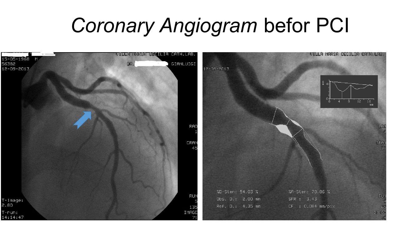 Coronary Angiogram befor PCI