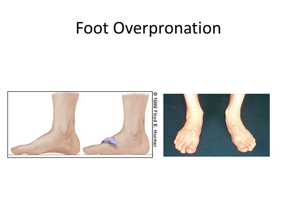 Foot Overpronation