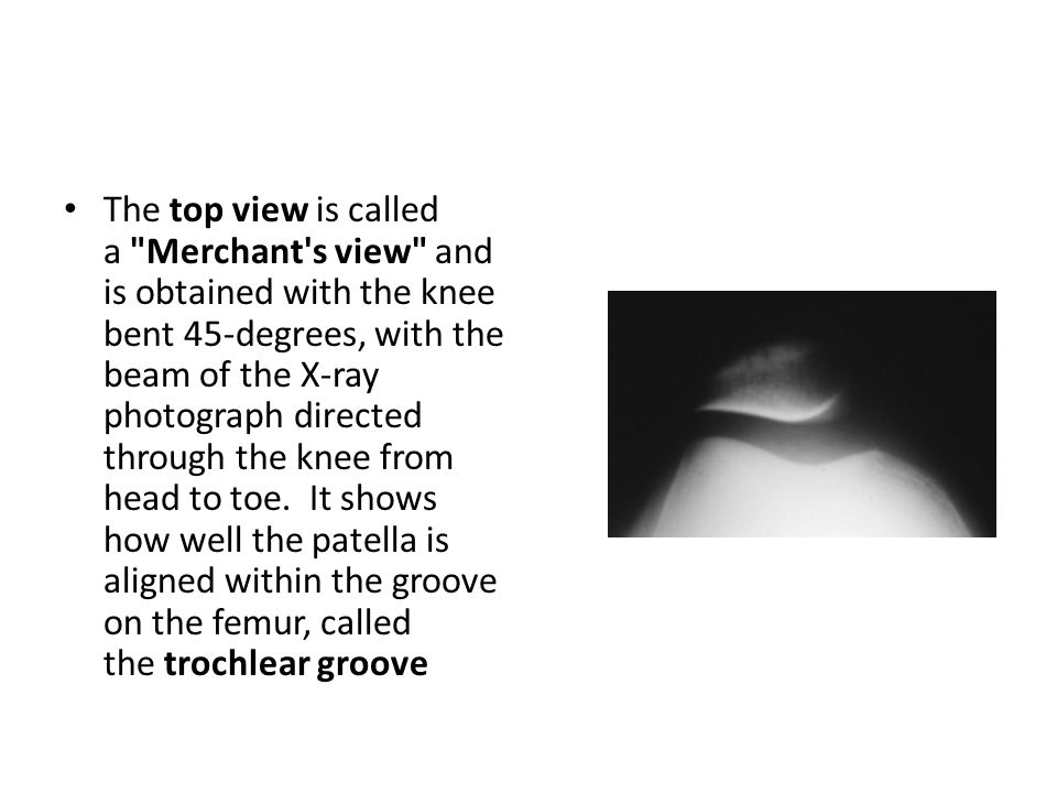 The top view is called a Merchant s view and is obtained with the knee bent 45-degrees, with the beam of the X-ray photograph directed through the knee from head to toe.
