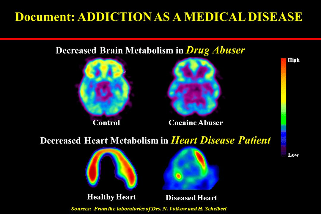 Healthy Heart Diseased Heart Decreased Heart Metabolism in Heart Disease Patient Document: ADDICTION AS A MEDICAL DISEASE Control Cocaine Abuser Decre