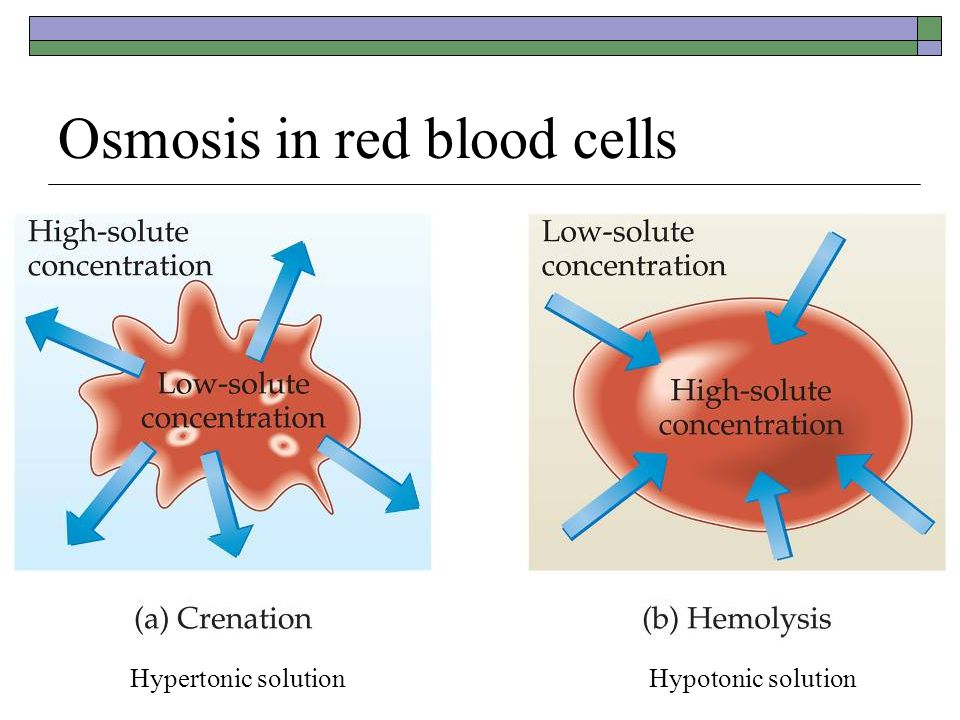 Osmosis in red blood cells Hypertonic solution Hypotonic solution