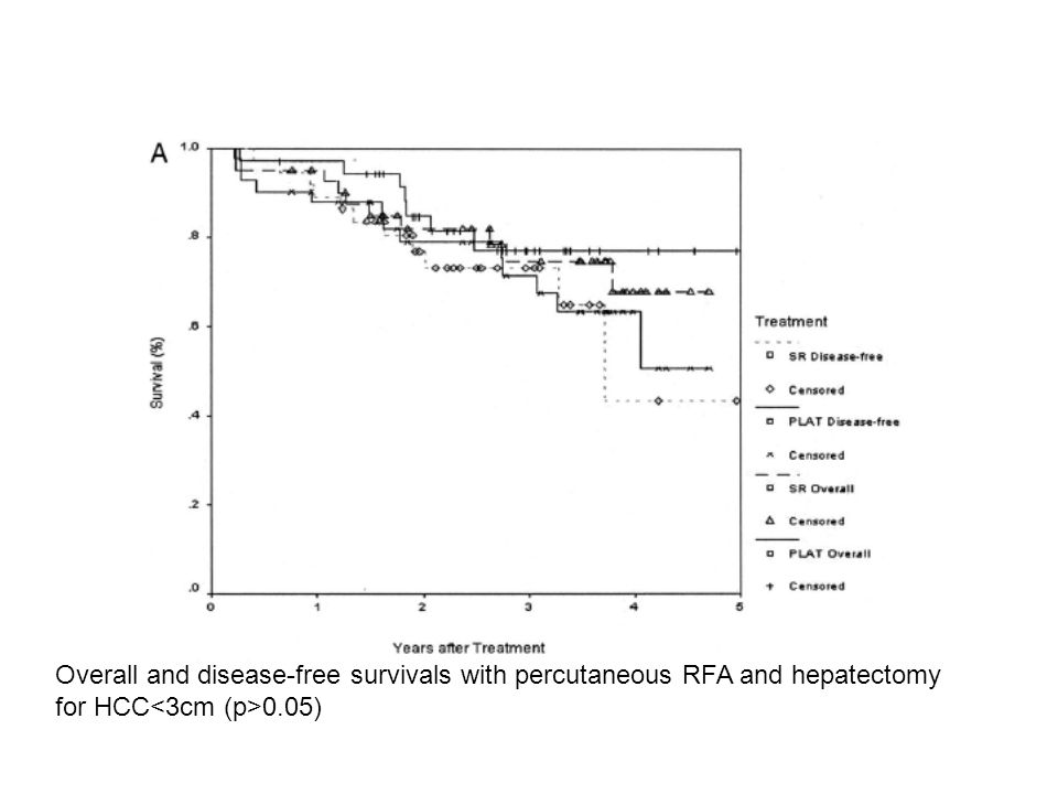Overall and disease-free survivals with percutaneous RFA and hepatectomy for HCC 0.05)