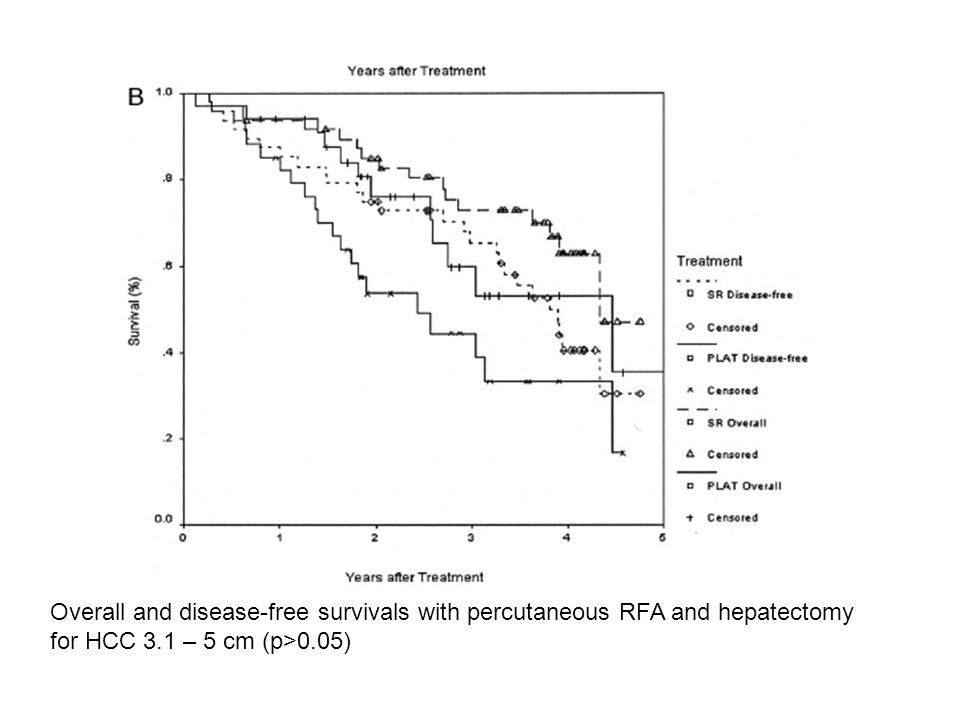 Overall and disease-free survivals with percutaneous RFA and hepatectomy for HCC 3.1 – 5 cm (p>0.05)