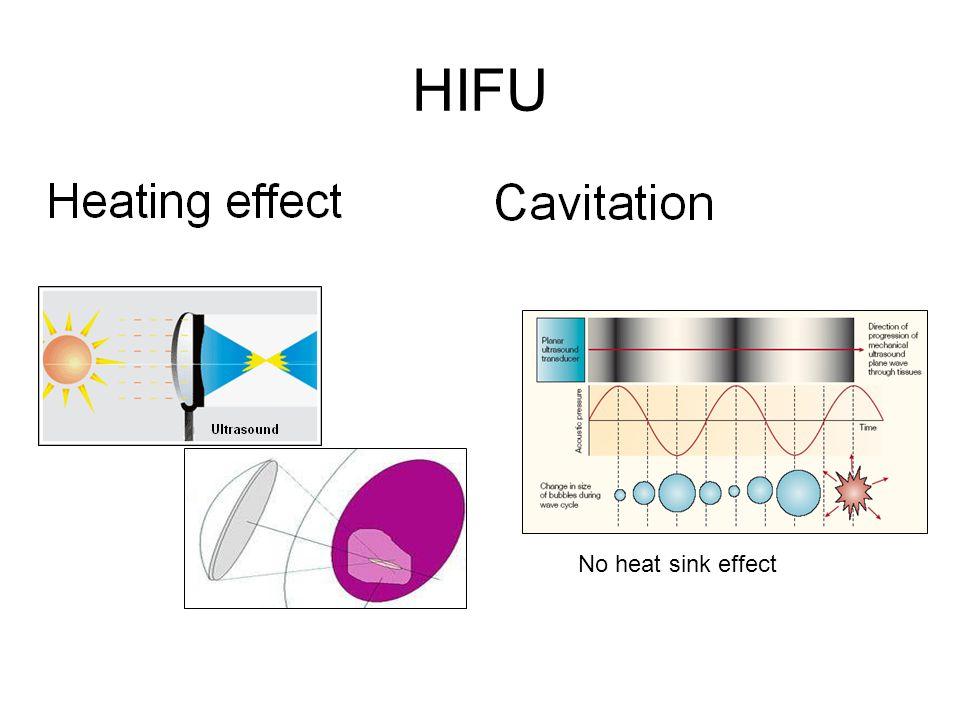 HIFU No heat sink effect