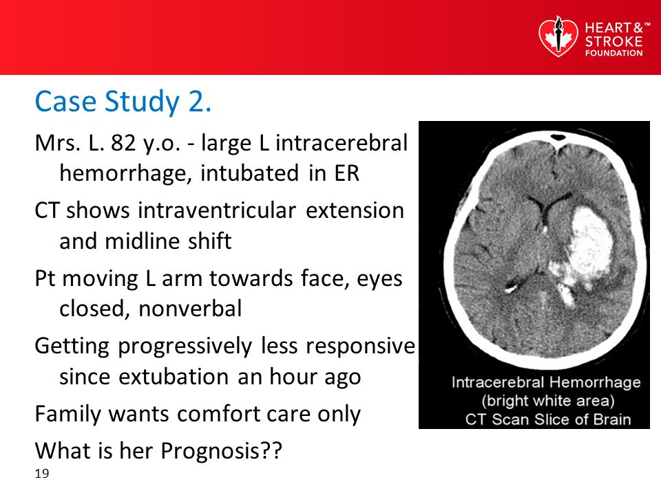 19 Case Study 2. Mrs. L. 82 y.o. - large L intracerebral hemorrhage, intubated in ER CT shows intraventricular extension and midline shift Pt moving L