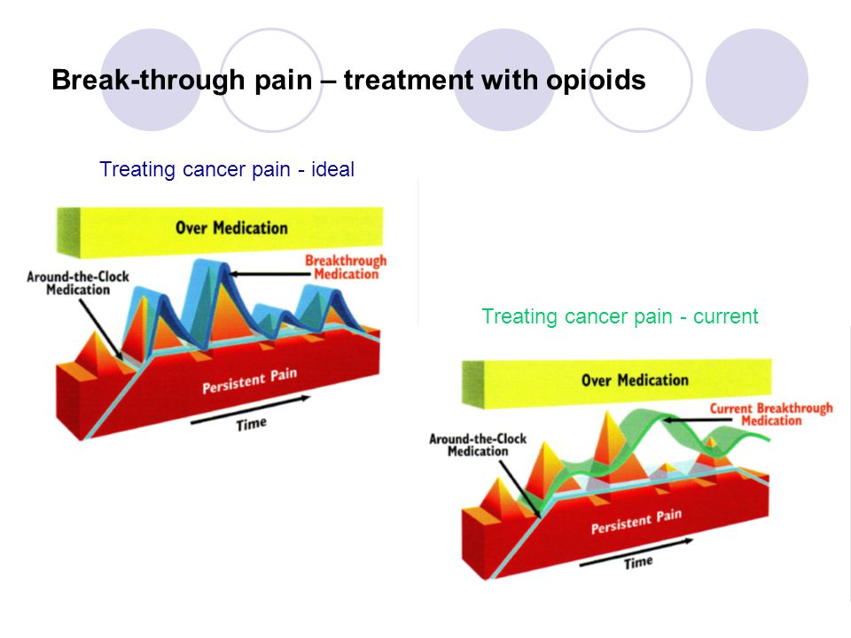 Break-through pain – treatment with opioids Treating cancer pain - ideal Treating cancer pain - current