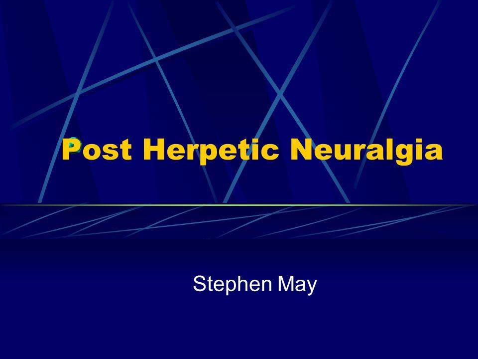 Post Herpetic Neuralgia Stephen May