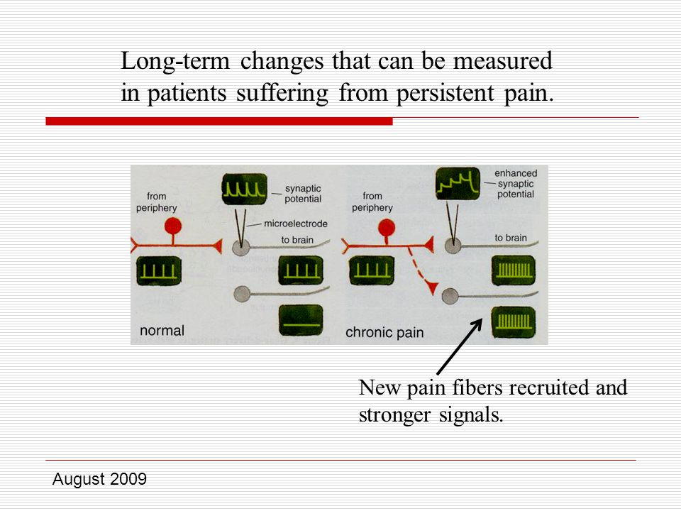 August 2009 Long-term changes that can be measured in patients suffering from persistent pain.