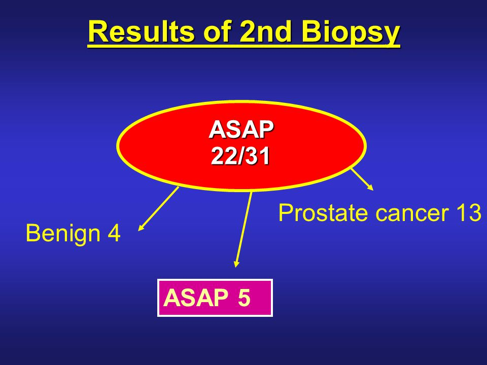 Results of 2nd Biopsy Benign 4 ASAP 5 Prostate cancer 13 ASAP22/31