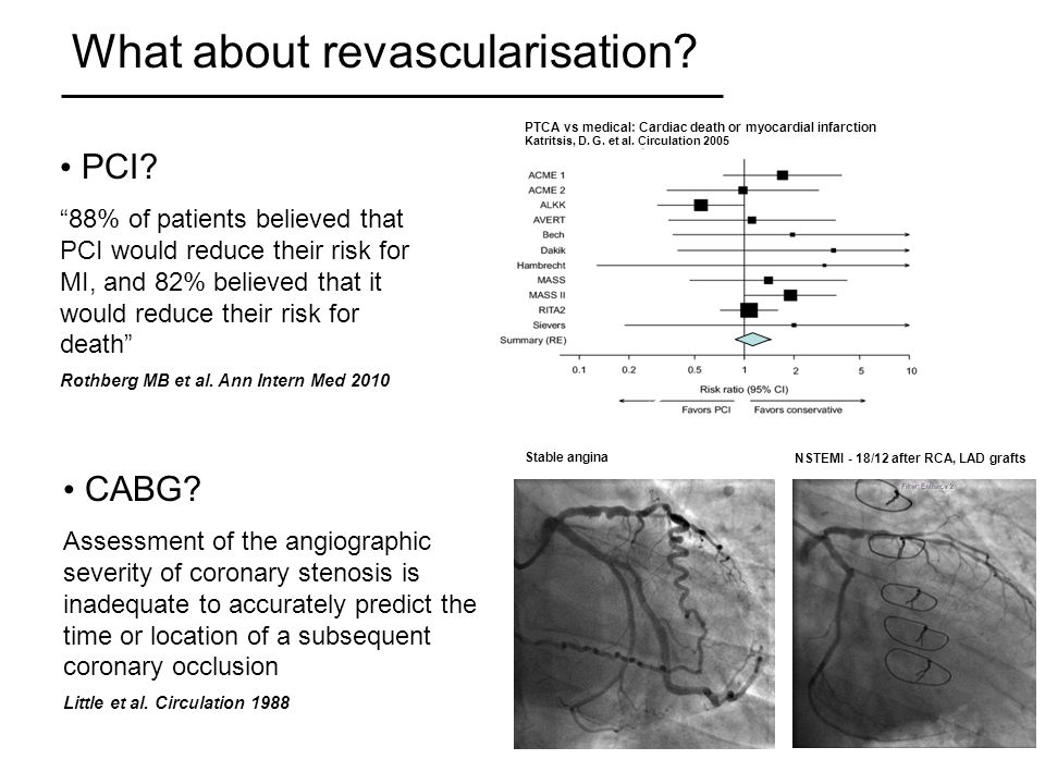 What about revascularisation.PCI.