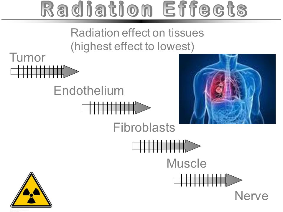 Radiation effect on tissues (highest effect to lowest) Tumor Endothelium Muscle Nerve Fibroblasts
