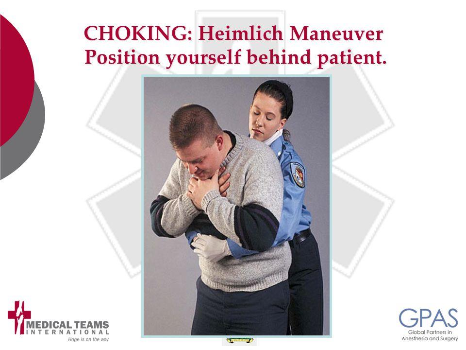 CHOKING: Heimlich Maneuver Position yourself behind patient. Position yourself behind patient.