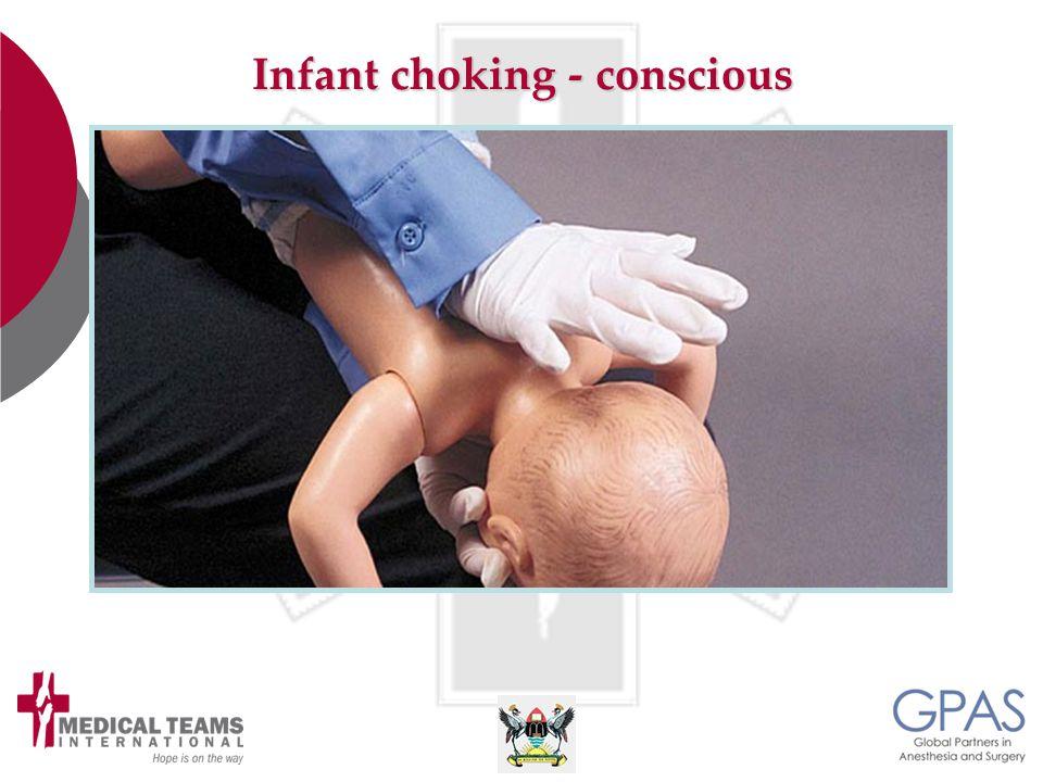 Infant choking - conscious