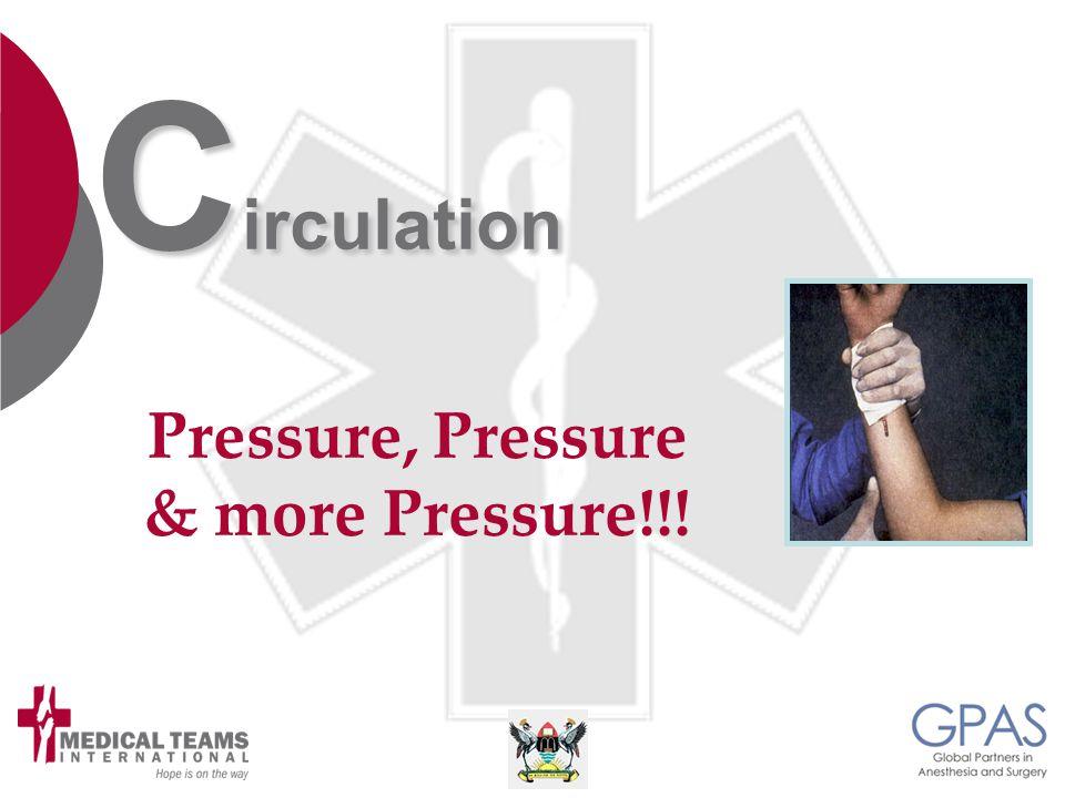 C irculation Pressure, Pressure & more Pressure!!!