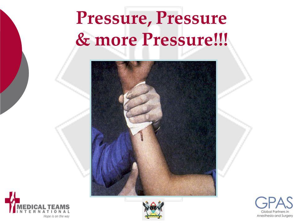 Pressure, Pressure & more Pressure!!!