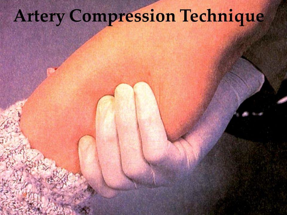 Artery Compression Technique