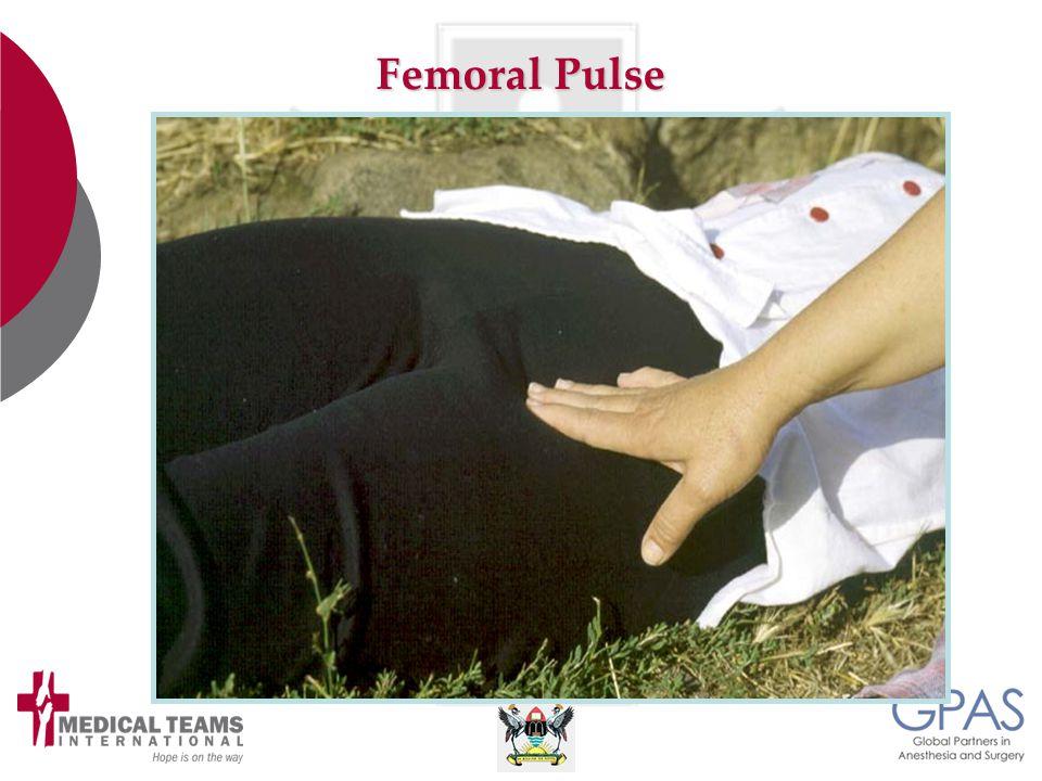 Femoral Pulse
