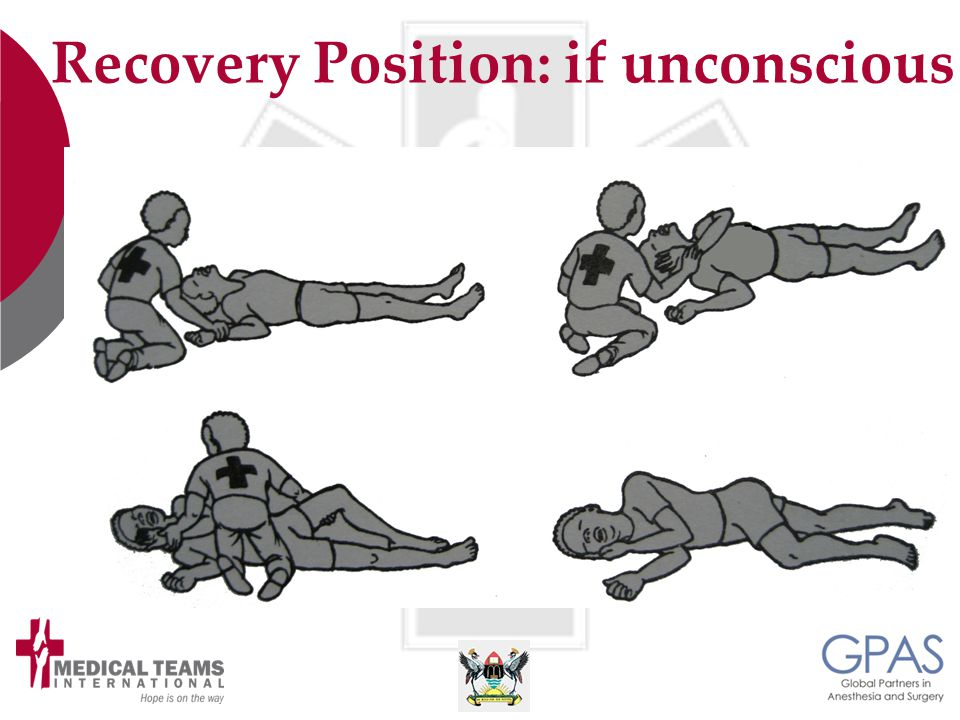 Recovery Position: if unconscious