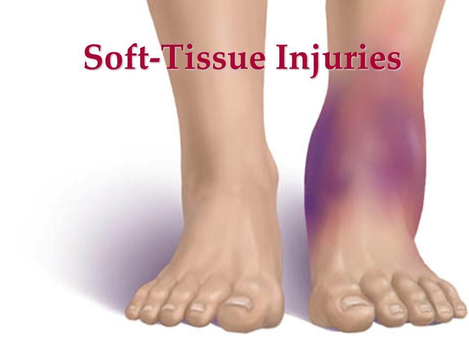 Soft-Tissue Injuries