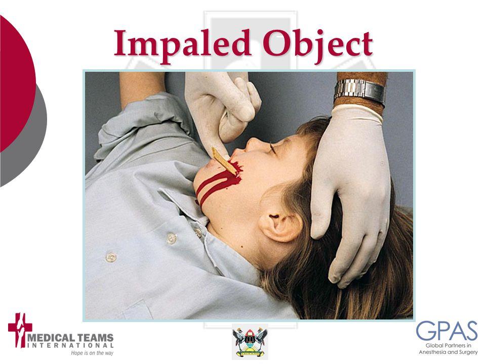 Impaled Object