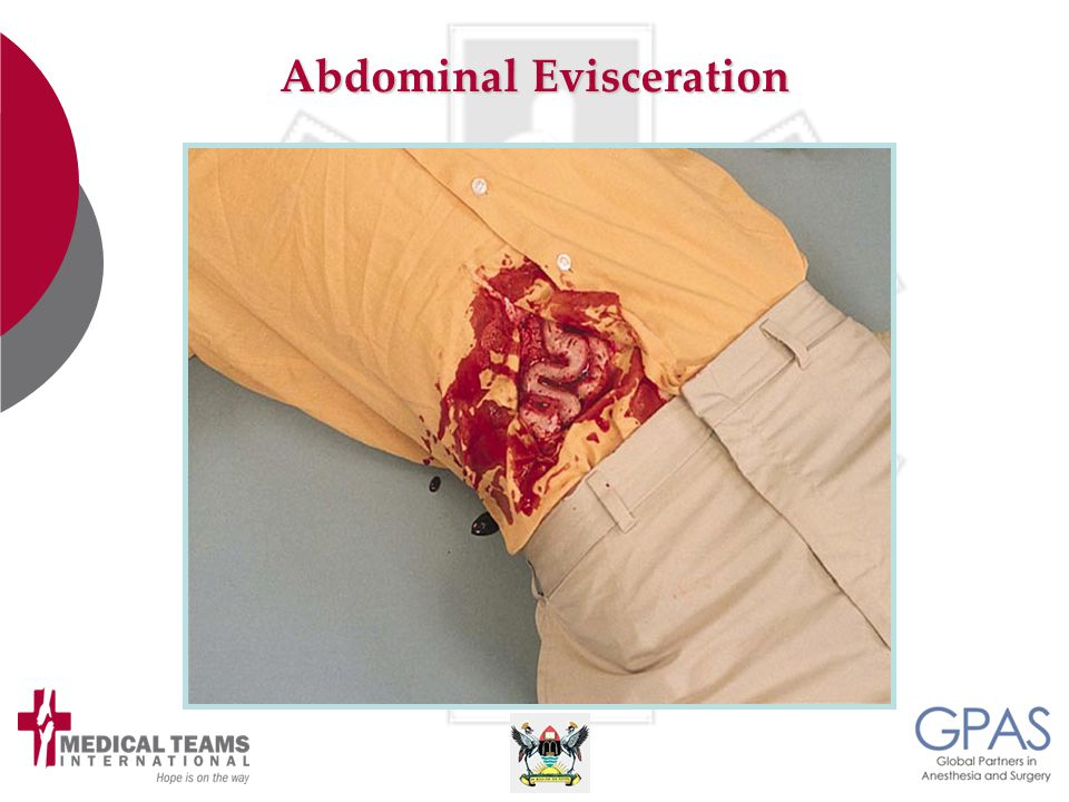 Abdominal Evisceration