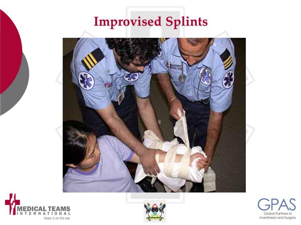 Improvised Splints