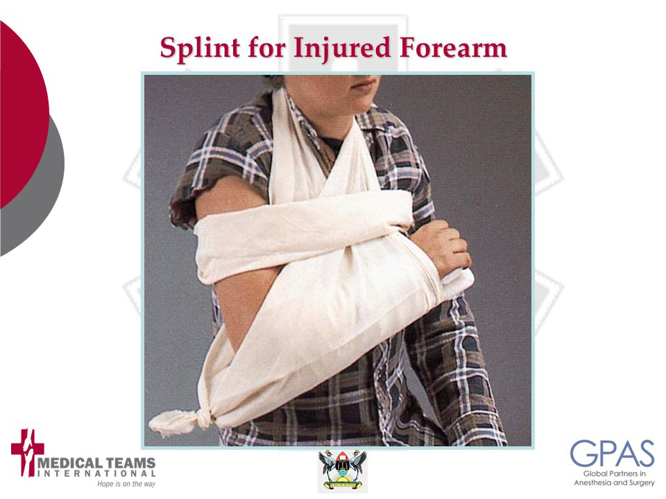 Splint for Injured Forearm