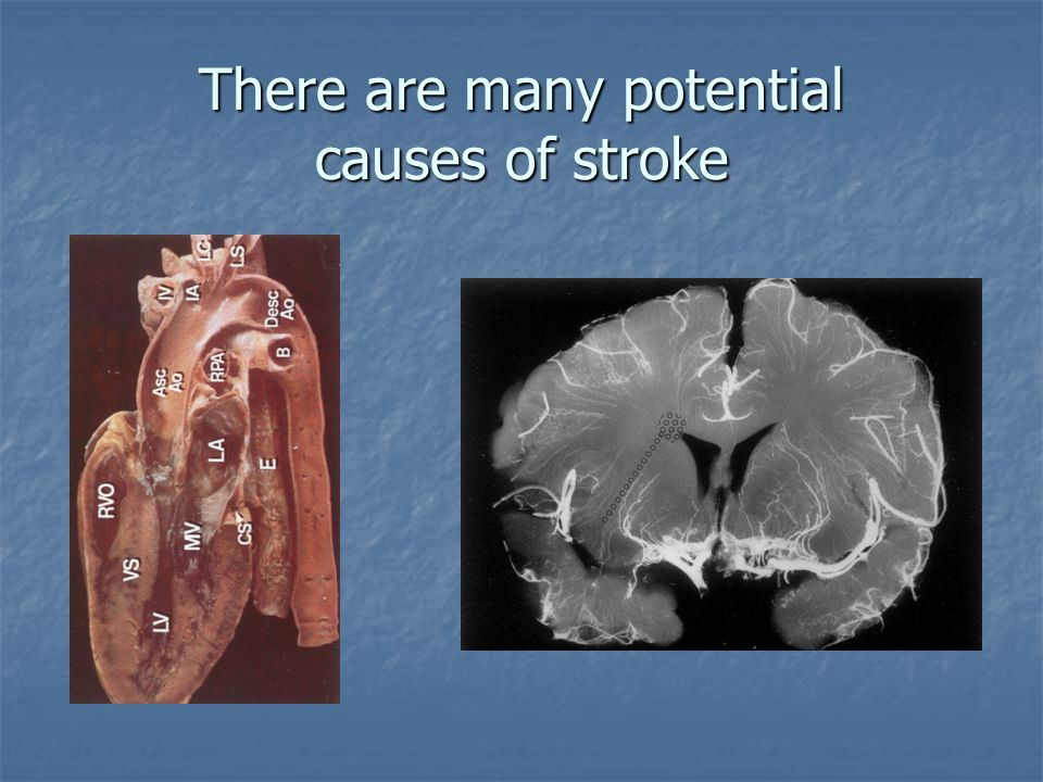 There are many potential causes of stroke