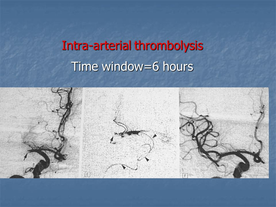 Intra-arterial thrombolysis Time window=6 hours