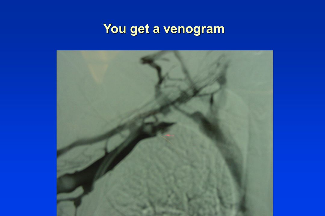 You get a venogram