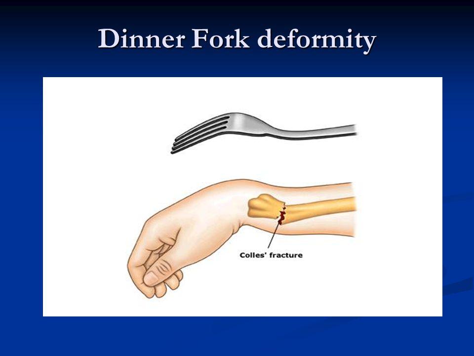 Dinner Fork deformity
