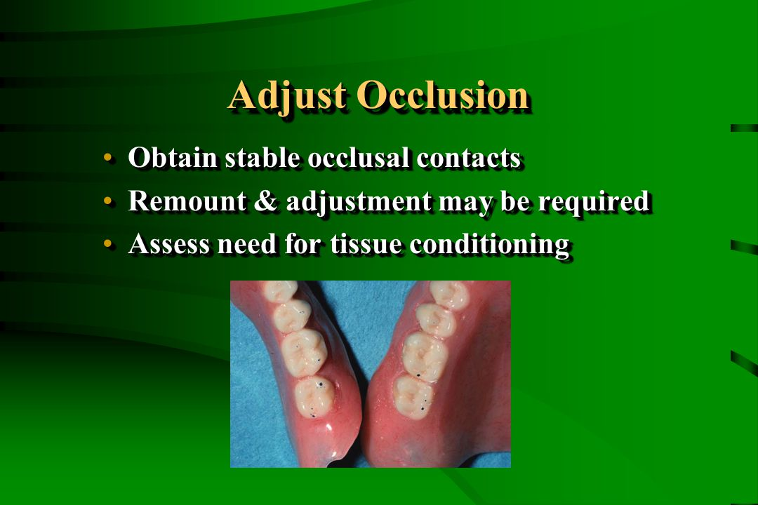 Adjust Occlusion Obtain stable occlusal contactsObtain stable occlusal contacts Remount & adjustment may be requiredRemount & adjustment may be requir