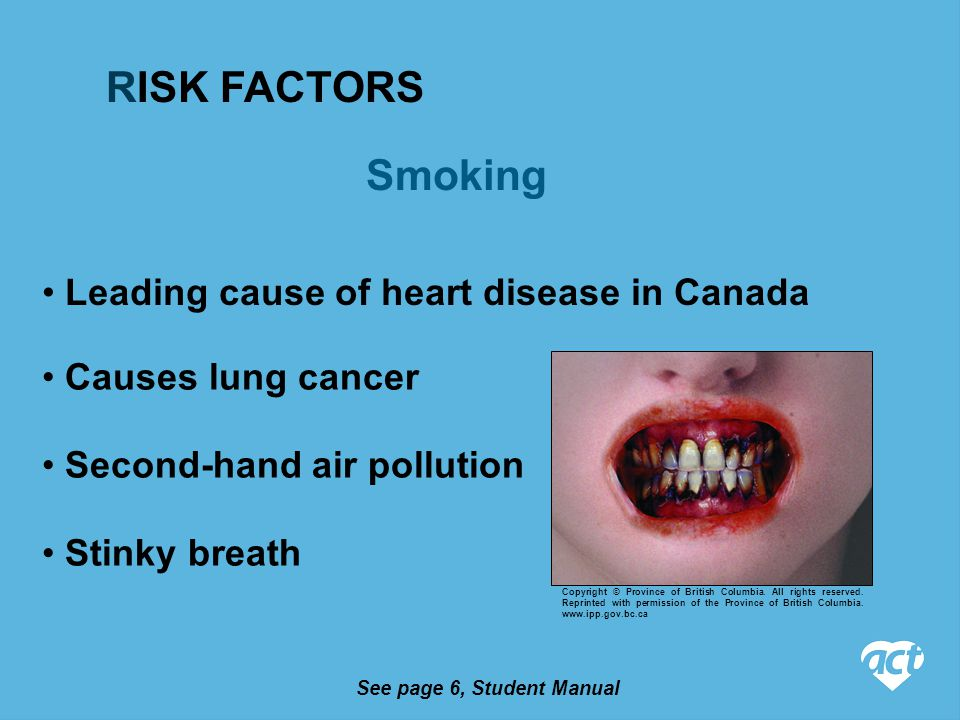 See page 6, Student Manual Smoking Causes lung cancer Leading cause of heart disease in Canada Second-hand air pollution Stinky breath RISK FACTORS Copyright © Province of British Columbia.