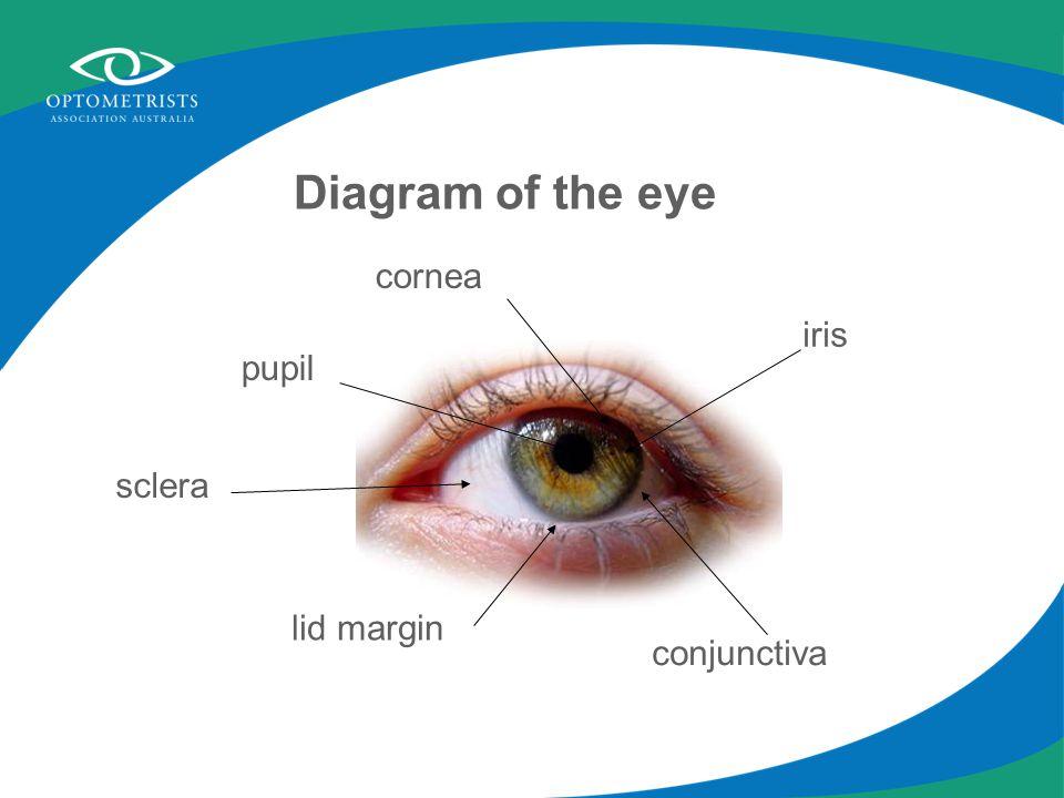 lid margin iris cornea conjunctiva sclera pupil Diagram of the eye