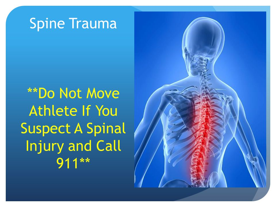 Spine Trauma **Do Not Move Athlete If You Suspect A Spinal Injury and Call 911**