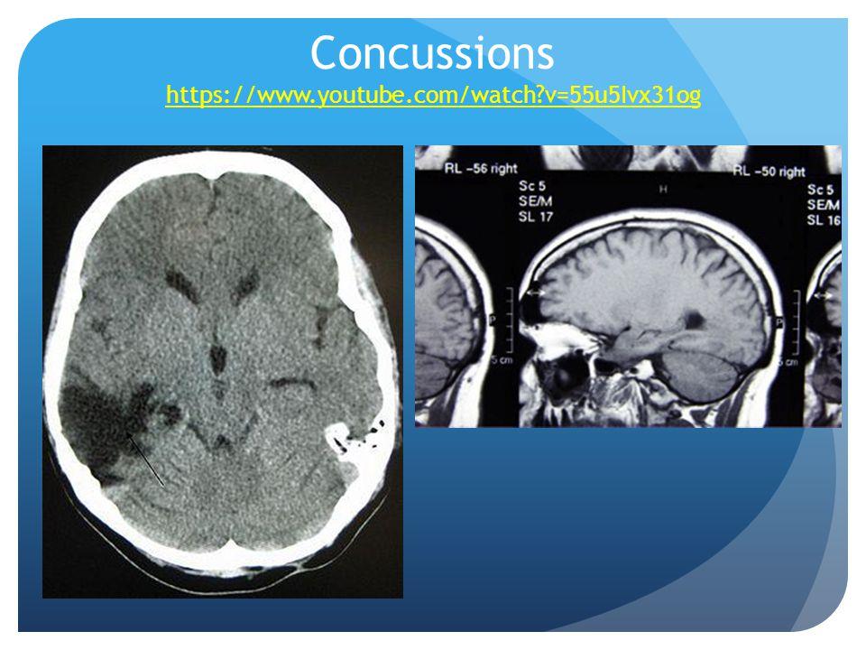 Concussions https://www.youtube.com/watch v=55u5Ivx31og