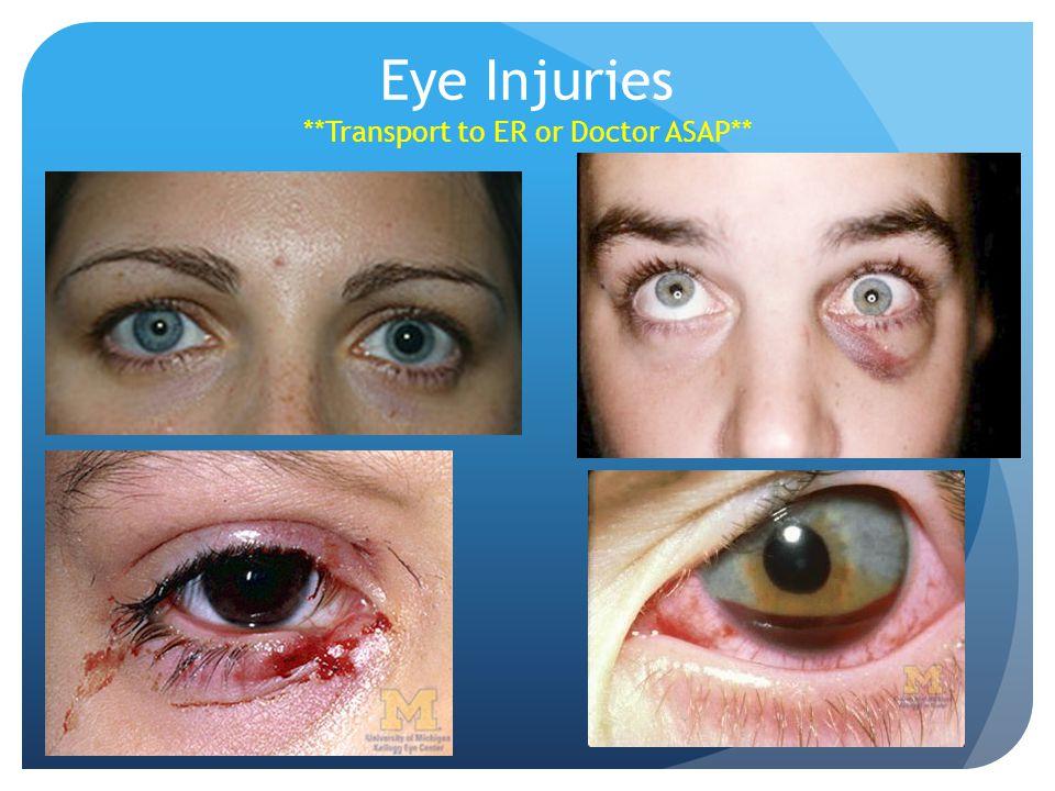Eye Injuries **Transport to ER or Doctor ASAP**