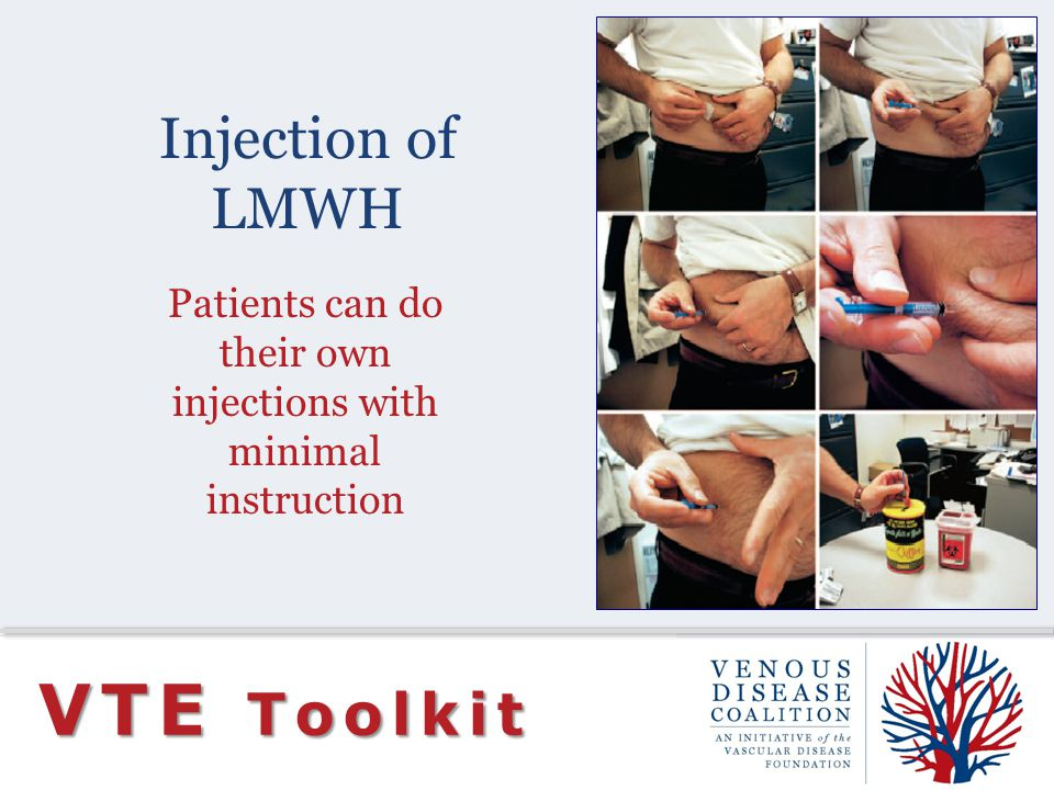 Injection of LMWH VTE Toolkit Patients can do their own injections with minimal instruction