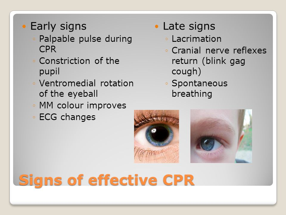 Signs of effective CPR Early signs ◦Palpable pulse during CPR ◦Constriction of the pupil ◦Ventromedial rotation of the eyeball ◦MM colour improves ◦ECG changes Late signs ◦Lacrimation ◦Cranial nerve reflexes return (blink gag cough) ◦Spontaneous breathing