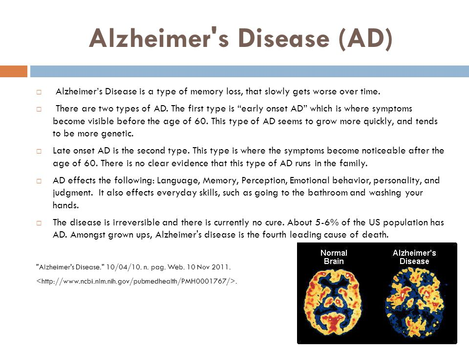 Alzheimer s Disease (AD)  Alzheimer's Disease is a type of memory loss, that slowly gets worse over time.