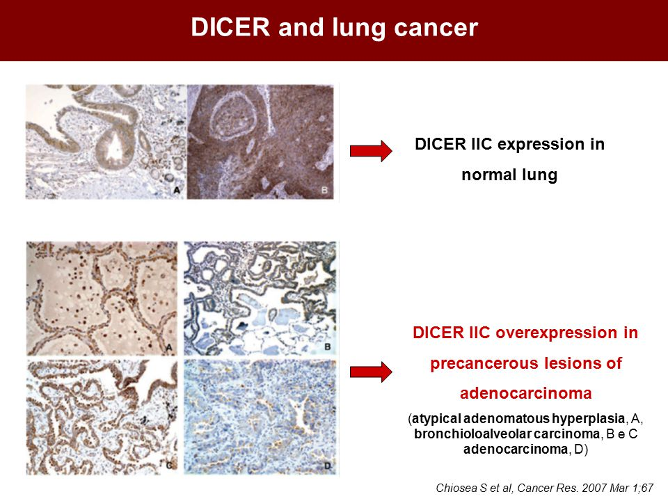 DICER and lung cancer DICER IIC expression in normal lung DICER IIC overexpression in precancerous lesions of adenocarcinoma (atypical adenomatous hyperplasia, A, bronchioloalveolar carcinoma, B e C adenocarcinoma, D) Chiosea S et al, Cancer Res.