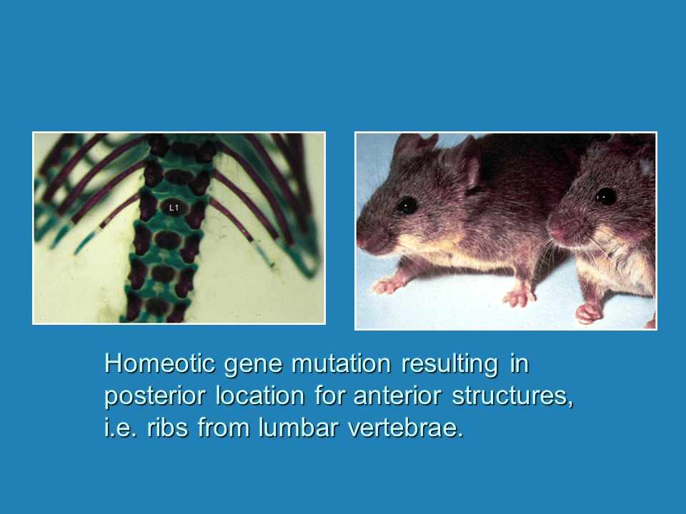 Homeotic gene mutation resulting in posterior location for anterior structures, i.e. ribs from lumbar vertebrae.