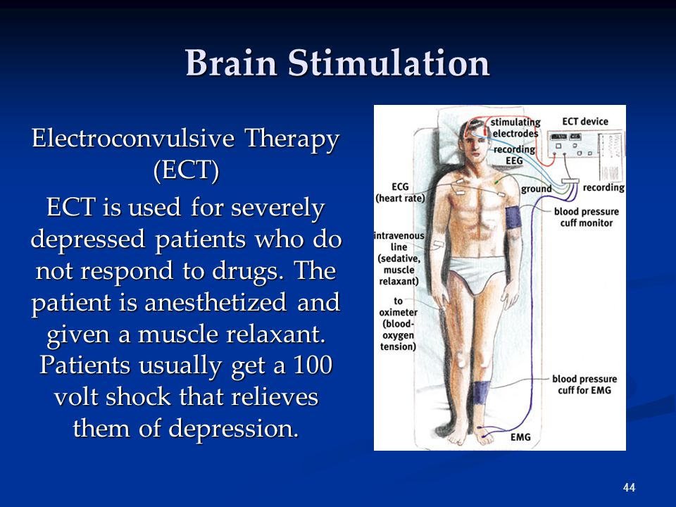 44 Brain Stimulation Electroconvulsive Therapy (ECT) ECT is used for severely depressed patients who do not respond to drugs.