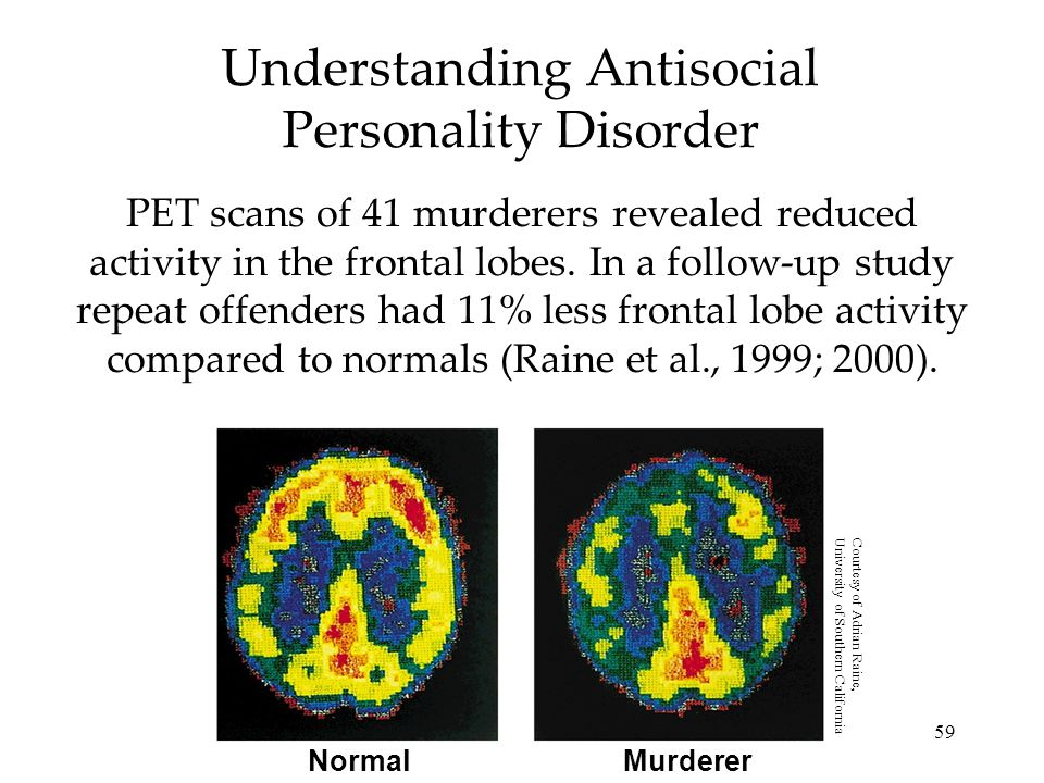 59 Understanding Antisocial Personality Disorder PET scans of 41 murderers revealed reduced activity in the frontal lobes. In a follow-up study repeat