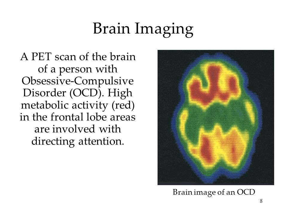 8 A PET scan of the brain of a person with Obsessive-Compulsive Disorder (OCD). High metabolic activity (red) in the frontal lobe areas are involved w