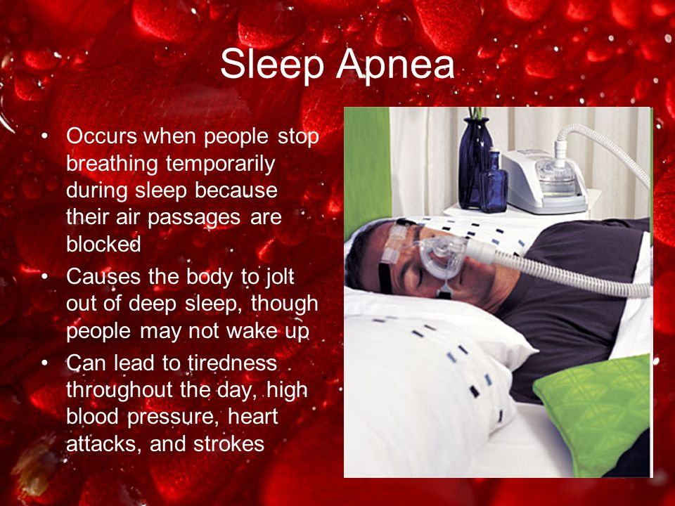 Sleep Apnea Occurs when people stop breathing temporarily during sleep because their air passages are blocked Causes the body to jolt out of deep slee