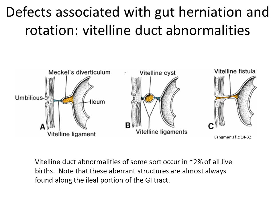 Defects associated with gut herniation and rotation: vitelline duct abnormalities Vitelline duct abnormalities of some sort occur in ~2% of all live b
