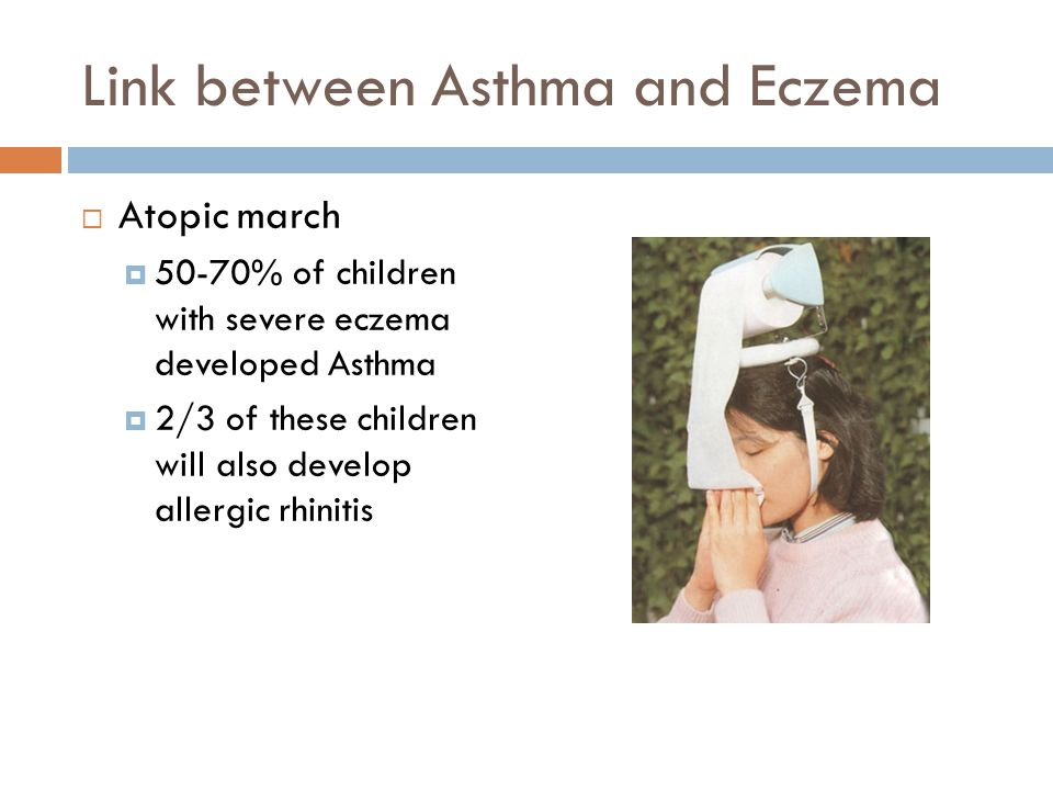 Link between Asthma and Eczema  Atopic march  50-70% of children with severe eczema developed Asthma  2/3 of these children will also develop allergic rhinitis