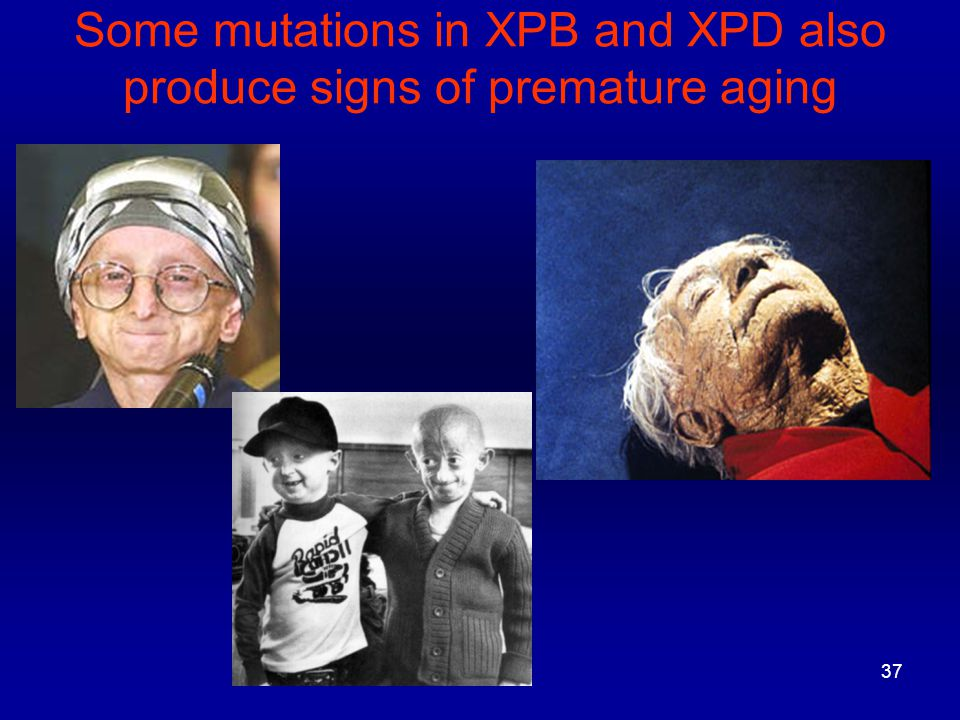 37 Some mutations in XPB and XPD also produce signs of premature aging