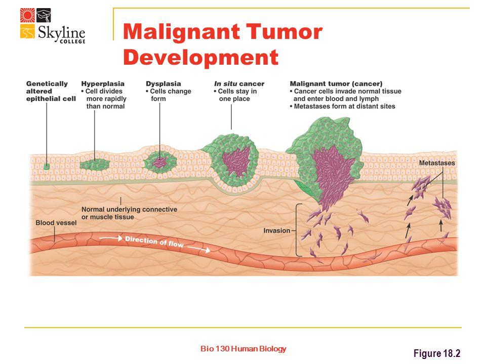 Bio 130 Human Biology Malignant Tumor Development Figure 18.2